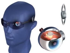 Imagen del sistema Argus II en la cual se observa, al lado izquierdo, una cabeza de maniquí portando las gafas que incorporan la microcámara en el puente , y en el lado derecho, un dibujo de un ojo seccionado donde se aprecia la ubicación del microchip y de la antena receptora de las imágenes procesadas