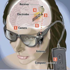 Imagen del sistema Orión I, en la que se observa el primer plano de la cabeza de una chica y los distintos componentes del sistema: las gafas que incorporan una microcámara en su puente y una antena emisora en una de las patillas, el procesador de video que va unido por medio de un cable a las gafas, y en el interior del cerebro de la chica, que en el dibujo se encuentra seccionado, se observa la implantación del chip electro estimulador y del receptor inalámbrico.