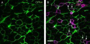 Imagen de parte de tejido celular retiniano visto a través de un microscopio, cuyo fondo es negro, y el entramado de red, o cadena que lo configura, es de color verde, todo ello en la imagen de la izquierda. La imagen de la derecha es de iguales características, si bien, la red es verde y por algunas zonas también morada, indicando la acción de la menalopsina.