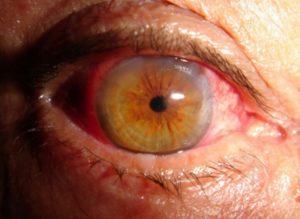 Imagen de un ojo con retinopatía diabética donde se observan los graves daños vasculares en forma de fugas de sangre que se pueden llegar a dar en esta enfermedad.
