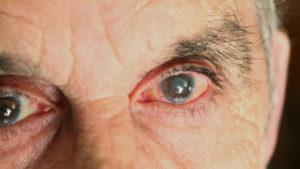 Imagen en la que se observa los ojos de una persona con glaucoma. Podemos observar un enrojecimiento anormal de los vasos sanguíneos por el aumento de la presión intraocular debida al mal drenaje del humor acuoso, que al no ser absorbido hacia el torrente sanguíneo, causa ese aumento de presión que se exterioriza y manifiesta de esta manera.